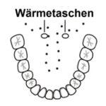 Wärmetaschen unter der Zunge - der richtige Platz, um Fieber zu messen